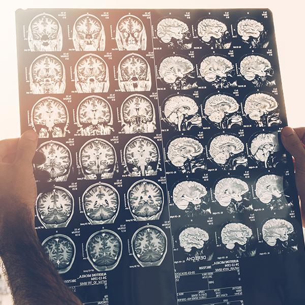 Medical Images